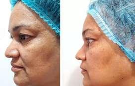 Ultherapy Lifting facial no quirúrgico