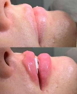 Diseño de labios