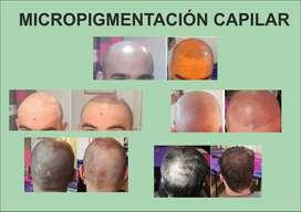 Micropigmentación Capilar, Micropigmentación Ojos, Labios. Microblading Cejas