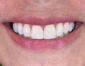 Se necesita Odontólogo-a con destreza comprobable en carillas de resina