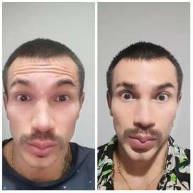 Botox para  lineas de expresion y   arrugas