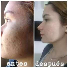 Tratamiento de acné, crono envejecimiento