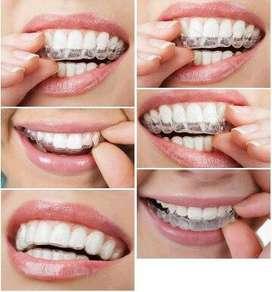 Retenedores Dentales Y placas para Bruxismo