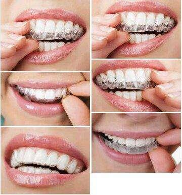 Retenedores Dentales Y placas para Bruxismo 0