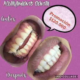 Aclaramiento dental $120.000