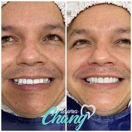 Carillas Dentales Blancas y Brillantes muy naturales
