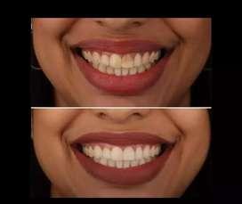 Diseño de sonrisa sin desgastar dientes, natural