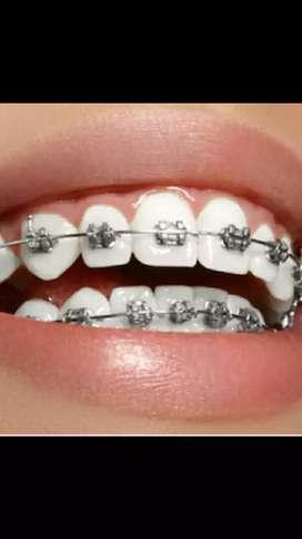 Braquets y prótesis dentales