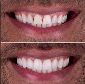 Diseño de sonrisa carillas