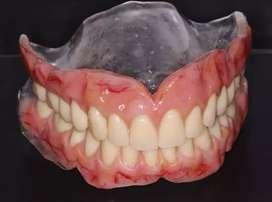 Placas dentales caracterizada
