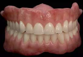 Placas dental acrilicas