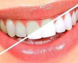 ortodoncia, retenedores, placas, blanqueamiento