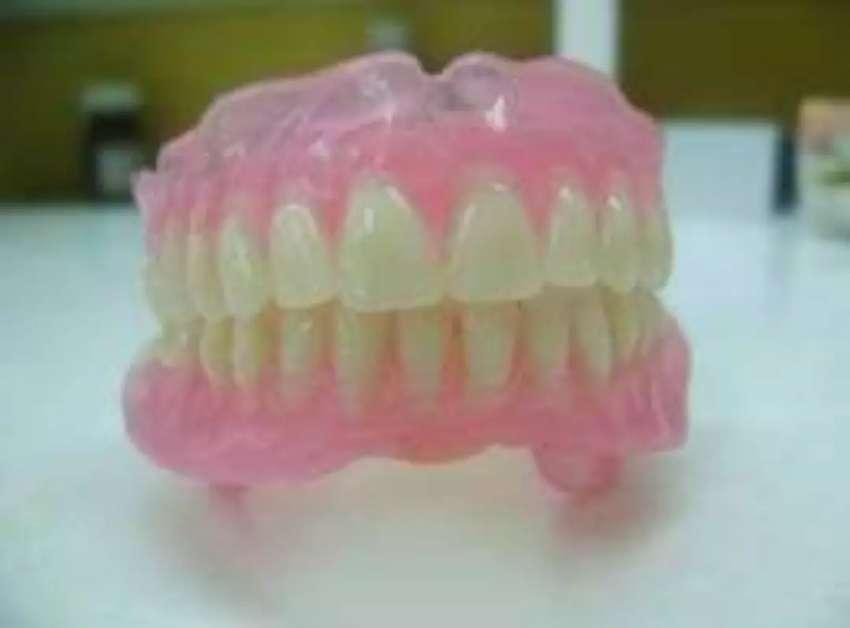 Placas dentales