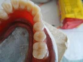 Cursos de Mecànica Dental Tècnica Dental de Laboratorio