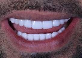 Diseño de sonrisa superior e inferior con aclaramiento