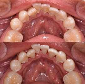 ILUMIDENTAL ofrece tratamientos odontológicos para niños y adultos
