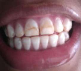 Dieño de Sonrisa