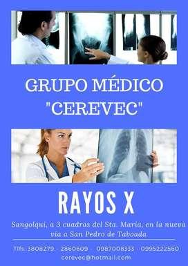 RAYOS X VALLE DE LOS CHILLOS