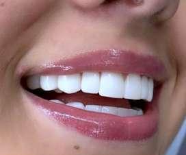 Diseños de Sonrisa