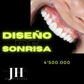 Odontologo, elaboración de diseño de sonrisa