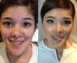 Tratamiento para el acné Manchas puntos negros huecos En La piel
