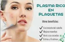 Aplicación del plasma rico en plaquetas