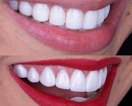 Diseño de sonrisa 10 carillas esteticas