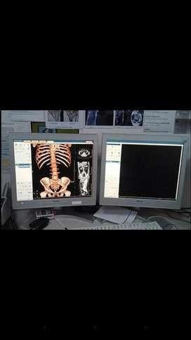 Tomografos