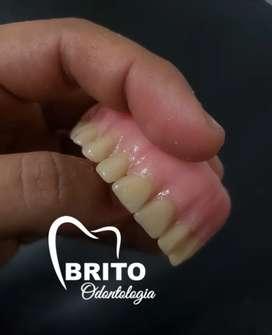 Protesis dentales odontologia