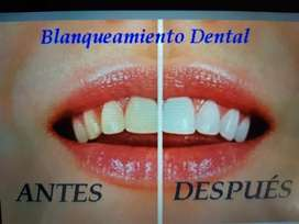 Blanqueamiento Dental Q550