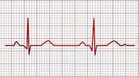 ecg electrocardiogramas a domicilio