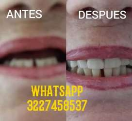 Prótesis dental re tenedores etc
