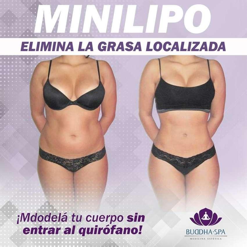 Minilipo para eliminar la grasa localizada 0