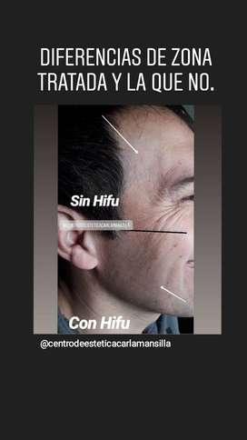 Lineas de expresión hifu facial
