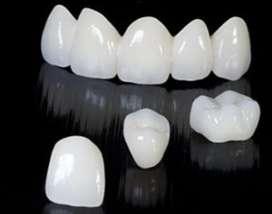 Coronas Dentales precios de laboratorio paga lo justo