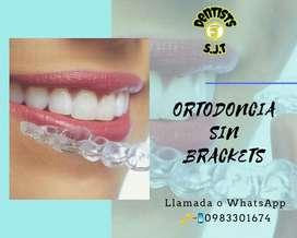 Ortodoncia Invisible Libre de Brackets