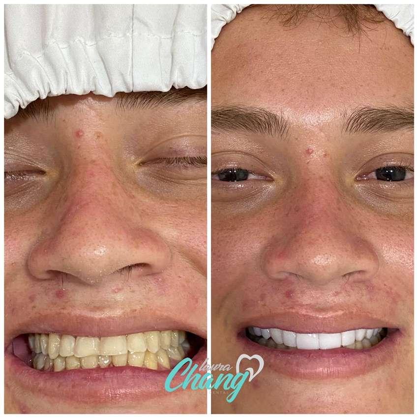 Carillas dentales para Diseñar tu Sonrisa