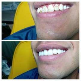 Carillas Estéticas Dentales.