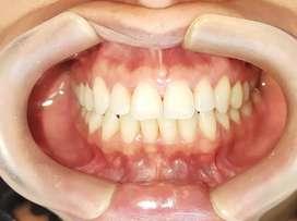 Solicito odontólogo general