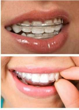 promoción de retenedores para fin de ortodoncia también retiramos brackets