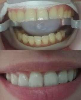 Blanqueamiento dental. ¿Crees que tu sonrisa puede ser tu carta de presentación?