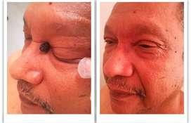 Eliminación con láser de lunares verrugas depósitos de colesterol