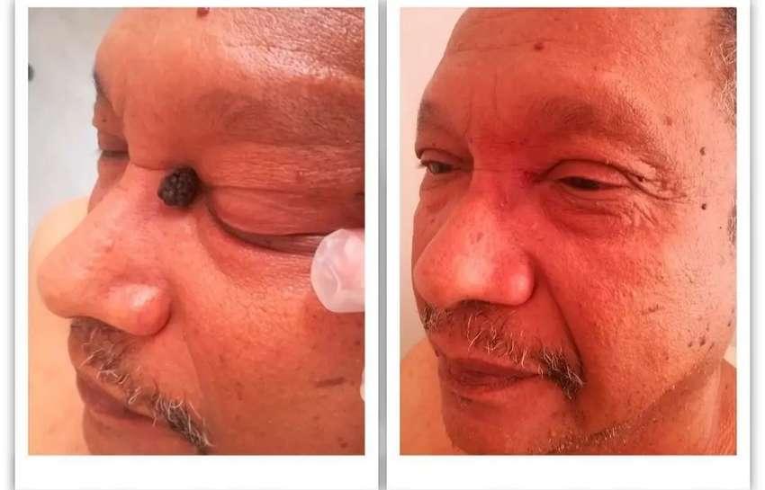 Eliminación con láser de lunares verrugas depósitos de colesterol 0
