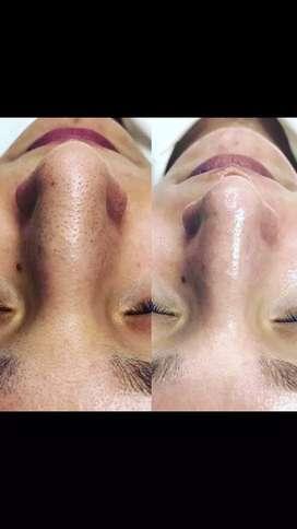 Limpieza profunda facial