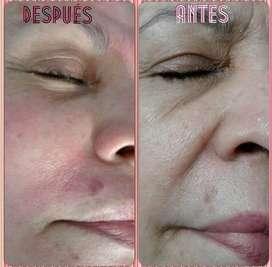 Relleno facial surcos nasogenianos