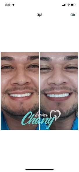 Diseño de sonrisa 8 carillas