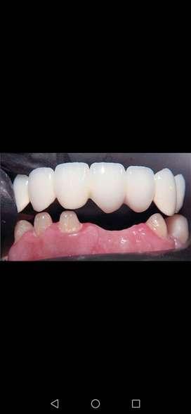 Coronas de porcelana placas dentales