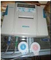 Monitor Fetal marca Edan modelo Cadence