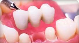 Coronas Dentales porcelana y Zirconio