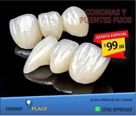 Prótesis Fija / Coronas Dentales / Puentes
